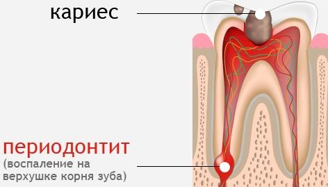 Лечение при воспалении верхушки корня зуба